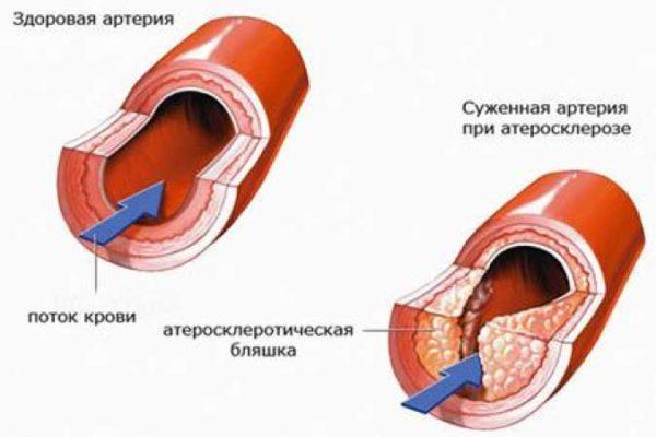 Сужение сосудов головного мозга: симптомы, лечение, причины