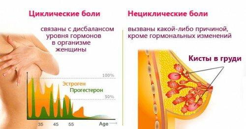 boli v grudi i ovulyaciya est li svyaz osnovnye prichiny i metody lecheniya