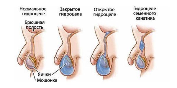 gidrocele vodyanka yaichka klinicheskaya kartina zabolevaniya i stepen opasnosti dlya muzhskogo zdorovya