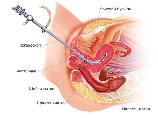 gisteroskopiya v ginekologii opisanie procedury i ee provedenie 1