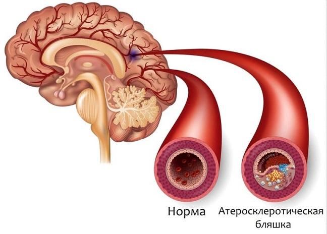 kak lechit cerebralnyj ateroskleroz