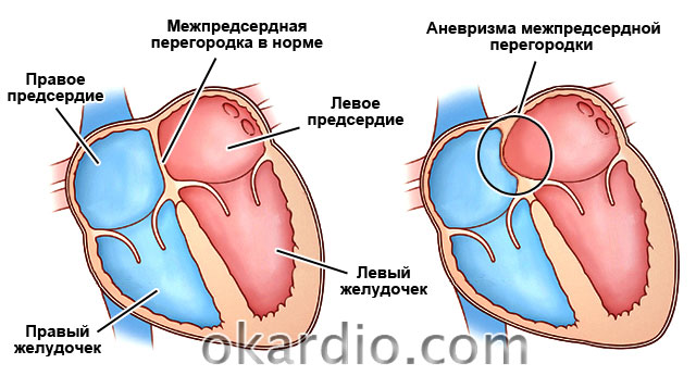 kak lechit i osnovnye simptomy anevrizmy mezhpredserdnoj peregorodki mpp