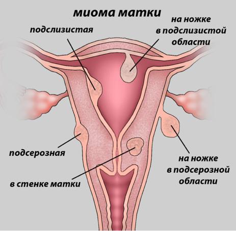 kak provoditsya udalenie miomy matki reabilitacionnyj period i vozmozhnye posledstviya