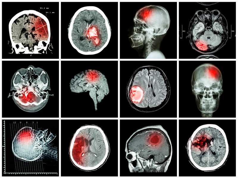 kt golovnogo mozga u detej metod ekstrennoj diagnostiki tyazheloj patologii