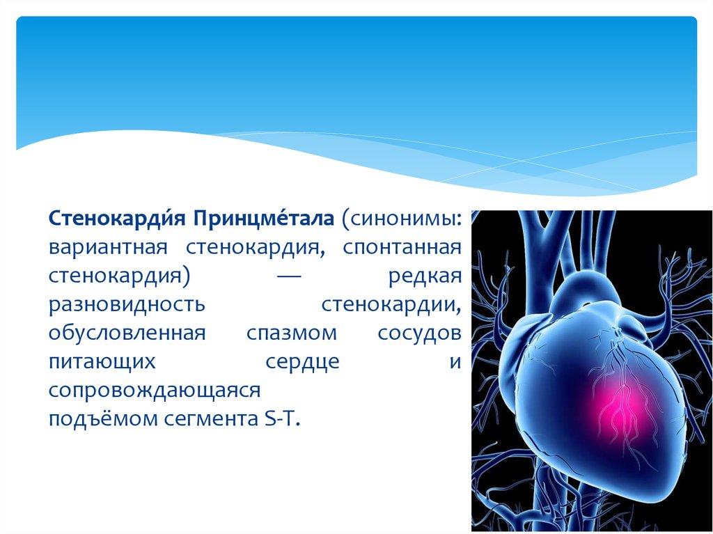 lechenie i diagnostika stenokardii princmetala