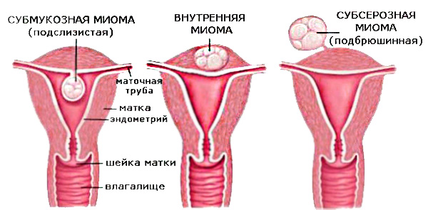 nekroz miomatoznogo uzla v chem opasnost etogo sostoyaniya i pochemu nelzya medlit s obrashheniem k vrachu