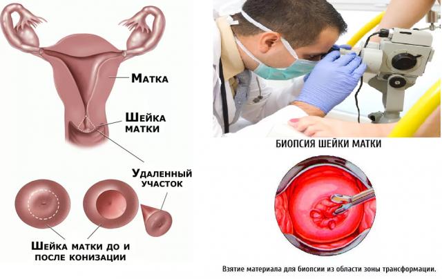 o metodah provedeniya biopsii shejki matki ee rezultatah i vosstanovlenii posle procedury