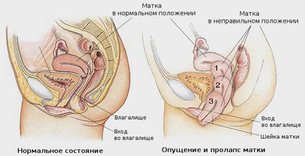 prichiny i lechenie opushheniya matki mozhno li obojtis bez operacii