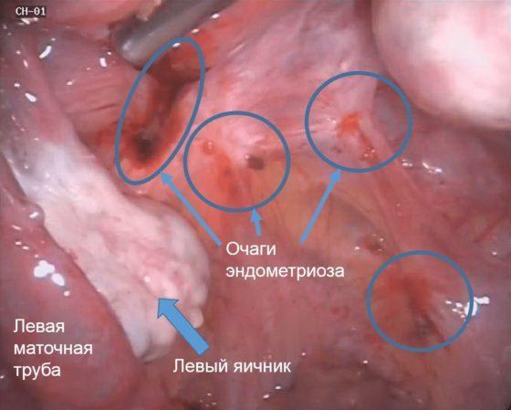 retrocervikalnyj endometrioz mozhno li sohranit zdorove i detorodnuju funkciju 1