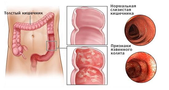 simptomy yazvennogo kolita kishechnika