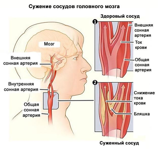 suzhenie sosudov golovnogo mozga