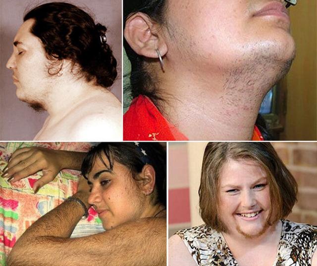 virilnyj sindrom androgenam v zhenskom organizme ne mesto