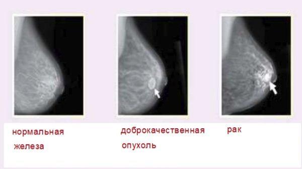 adenoma molochnoj zhelezy prichiny poyavleniya simptomy i lechenie patologii