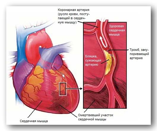 ateroskleroticheskaya bolezn serdca
