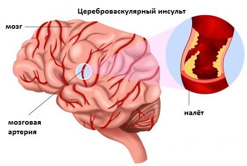 chto takoe cerebrovaskulyarnaya bolezn cvb