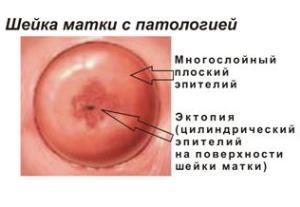 chto takoe endocerviks i ekzocerviks i kogda neobhodimo lechenie