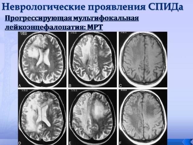 chto takoe lejkoencefalopatiya golovnogo mozga vidy diagnostika i lechenie