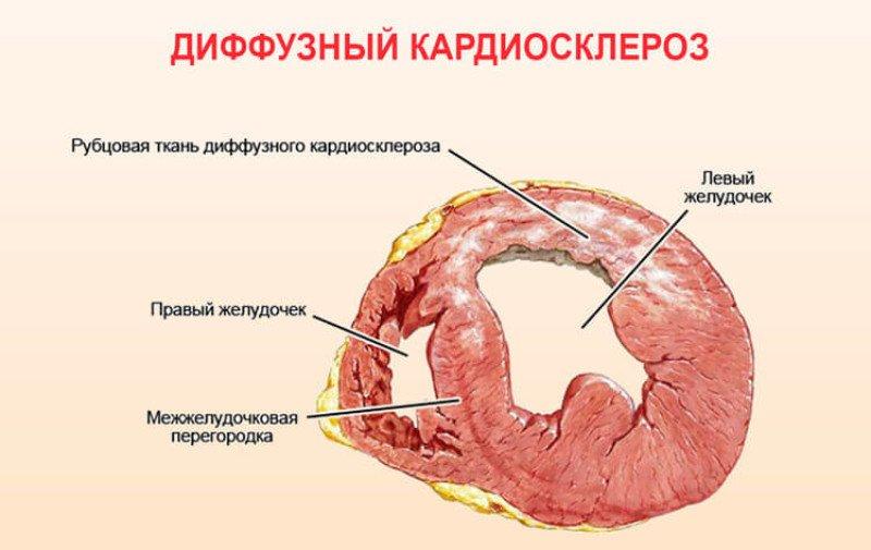 diagnostika i lechenie diffuznogo kardioskleroza