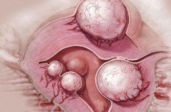 embolizaciya arterij matki o bezopasnosti procedury i veroyatnyh oslozhneniyah