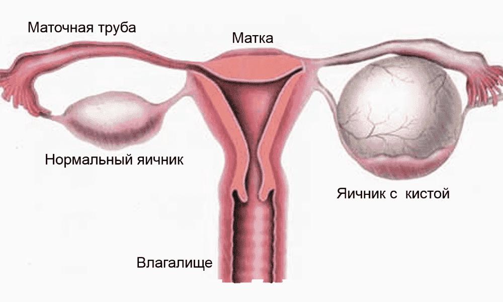 endometrioidnaya kista yaichnika prichiny simptomy lechenie