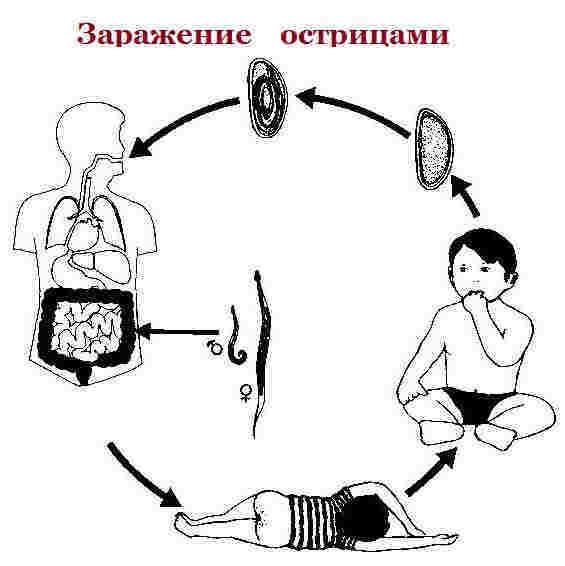 enterobioz u detej simptomy diagnostika i terapiya