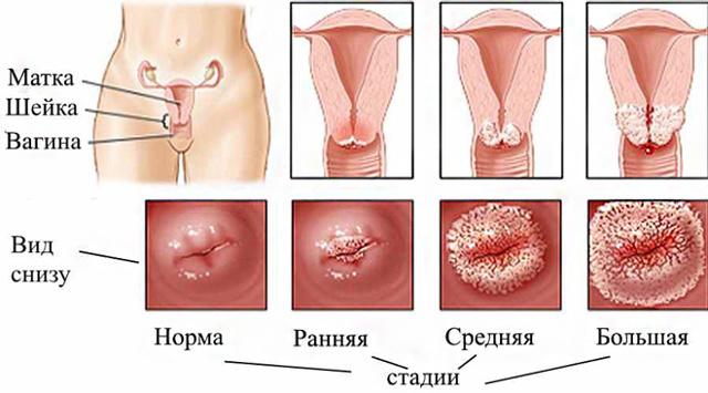 eroziya shejki matki posle rodov projdet sama ili neobhodima operaciya