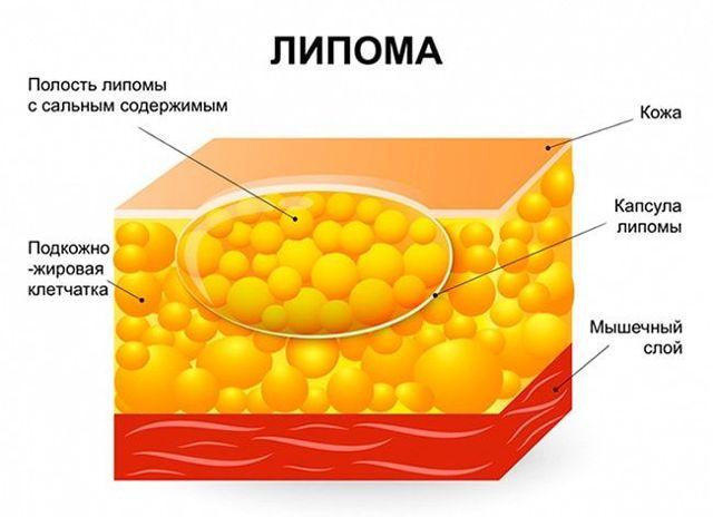 fibrolipoma molochnoj zhelezy nuzhno li bespokoitsya
