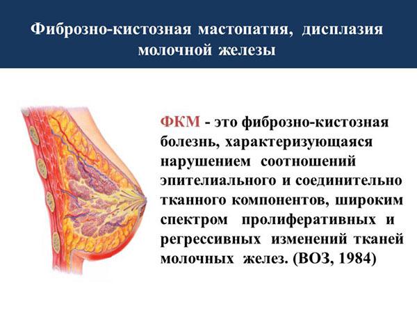 fibrozno kistoznaya mastopatiya kak raspoznat i diagnostirovat hirurgicheskoe i konservativnoe lechenie