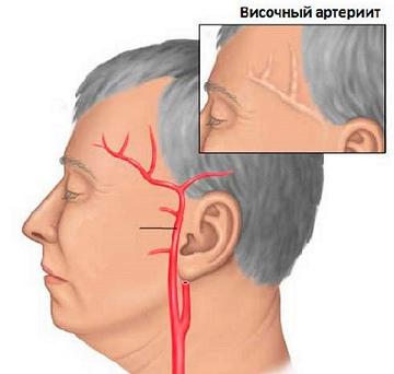 gigantokletochnyj visochnyj arteriit vsjo o zabolevanii