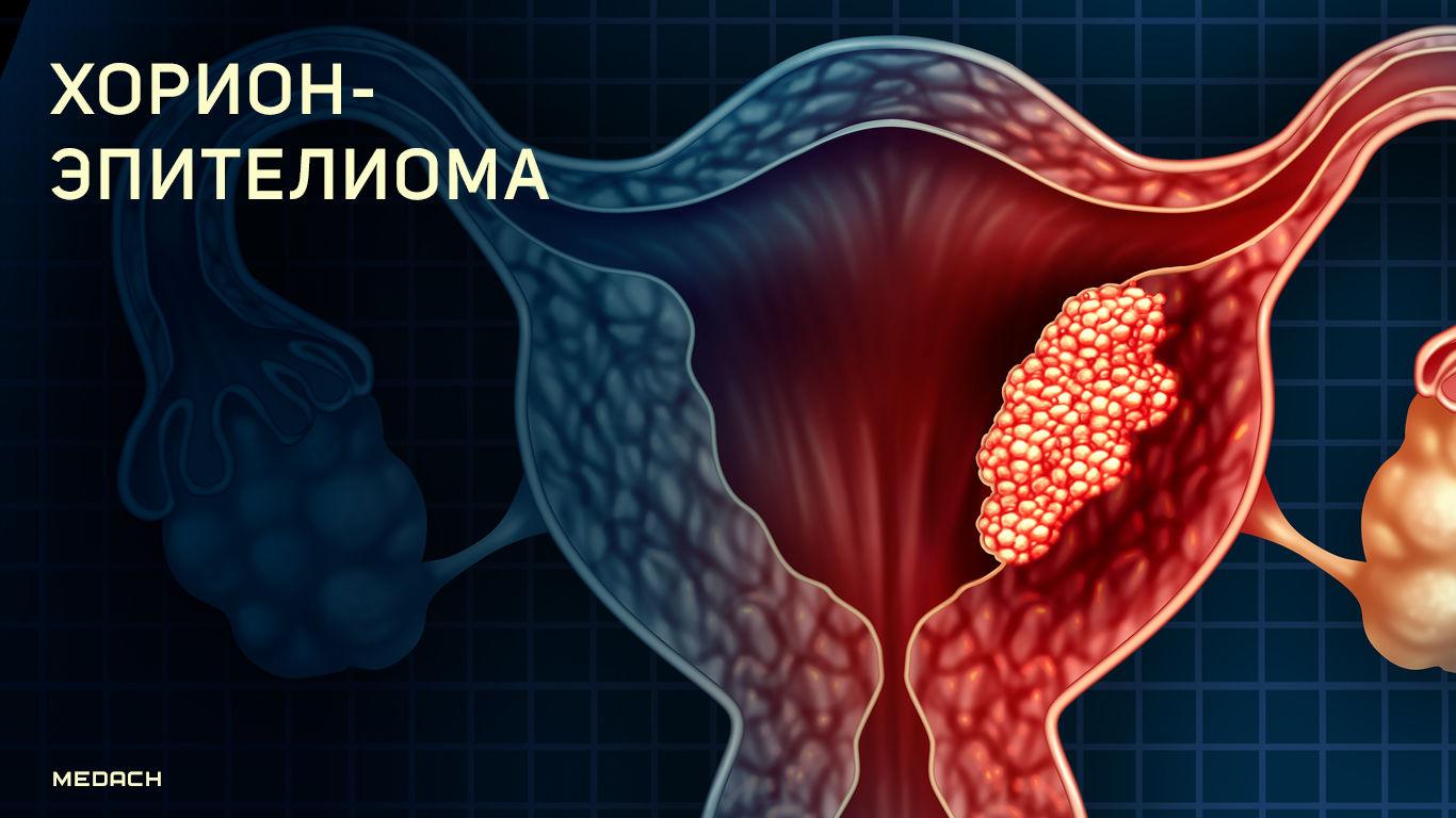 horionepitelioma matki zlokachestvennoe obrazovanie s horoshim prognozom lecheniya