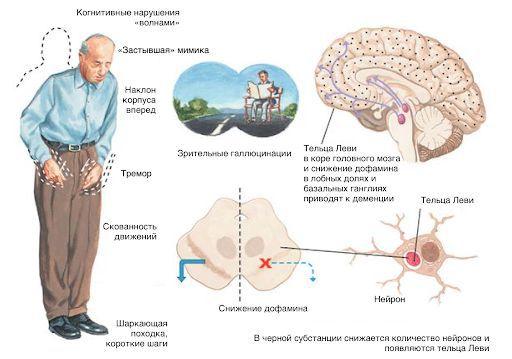 ishemicheskaya bolezn golovnogo mozga