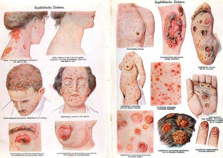 izlechim li sifilis polnostju ili net est otvet