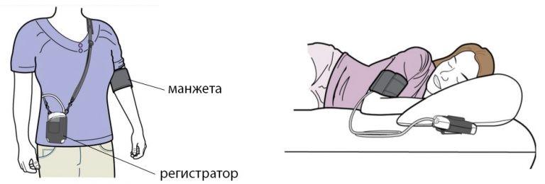 kak provoditsya sutochnoe monitorirovanie arterialnogo davleniya
