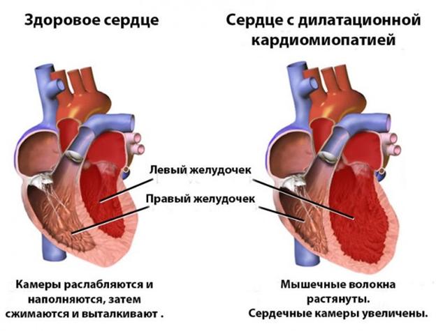kardiomiopatiya s dilataciej polostej serdca