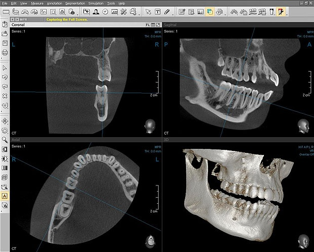 klkt obshhaya informaciya i primenenie v stomatologii