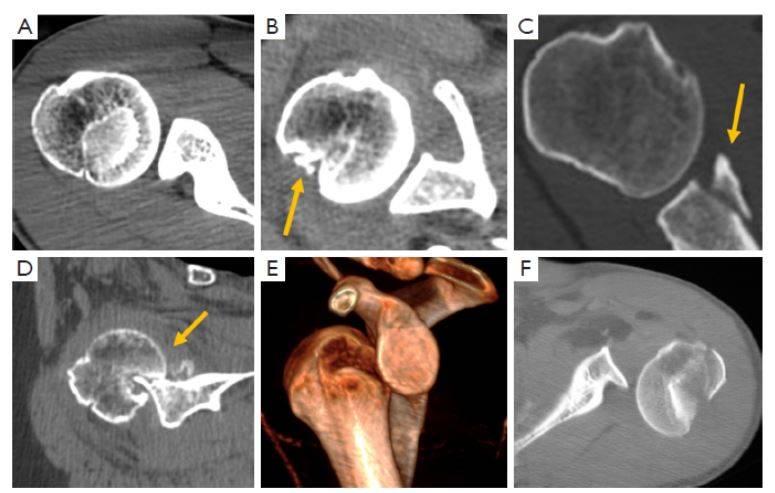 kompjuternaya tomografiya v ocenke patologii plechevogo sustava