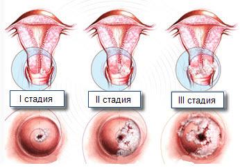 krauroz i lejkoplakiya vulvy simptomy patologicheskih izmenenij i metody lecheniya