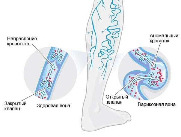 krossektomiya ven nizhnih konechnostej