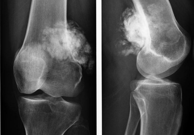 kt kolennogo sustava v sravnenii s alternativnymi metodami vizualizacii preimushhestva i nedostatki