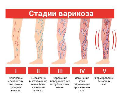 lechenie varikoznogo rasshireniya ven na nogah