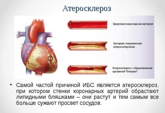 metody lecheniya i prichiny ateroskleroza koronarnyh arterij