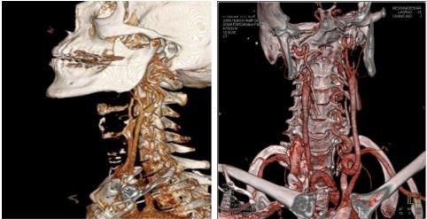 mskt angiografiya kontrastnoe issledovanie krovenosnogo rusla
