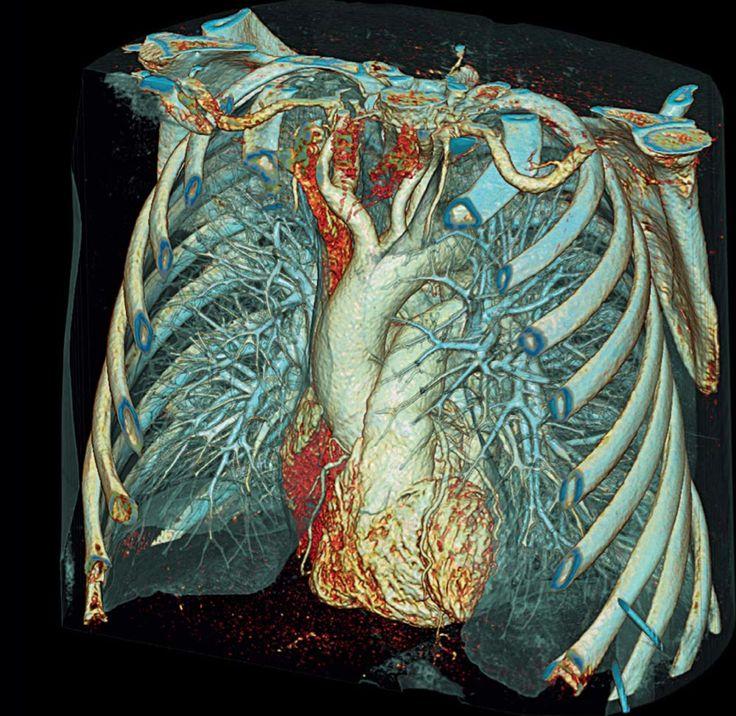 mskt organov grudnoj kletki sovremennyj podhod