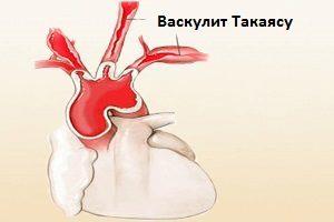 nespecificheskij aortoarteriit sindrom takayasu rekomendacii po diagnostike i lecheniju patologii