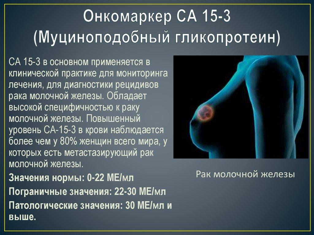 onkomarkery raka molochnoj zhelezy vozmozhnost rannej diagnostiki i vyyavleniya predraspolozhennosti