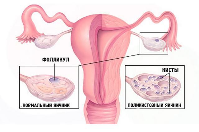 polikistoz yaichnikov stimulyaciya ovulyacii pomozhet zaberemenet