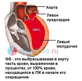 ponizhennaya i povyshennaya frakciya vybrosa serdca
