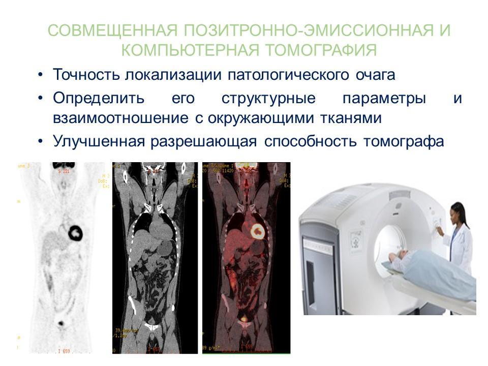 pozitronno emissionnaya kompjuternaya tomografiya preimushhestva podgotovka diagnostika