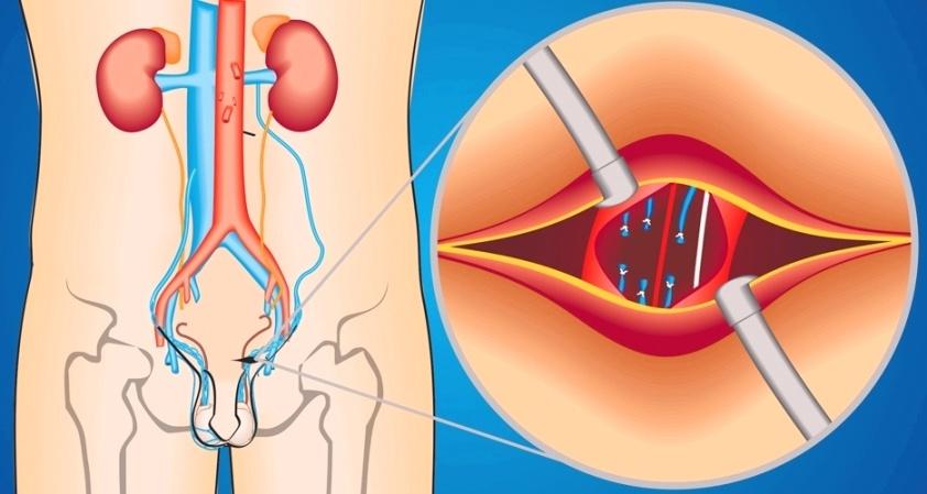 primenenie metoda marmara v hirurgicheskom lechenii varikocele