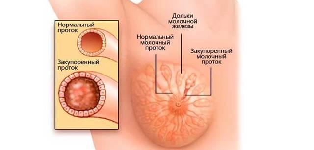 rasshirenie ektaziya protokov molochnoj zhelezy patologicheskij ili fiziologicheskij process